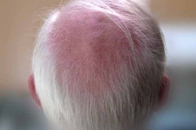 "March 2012: Things that are round, ""My bald spot"""